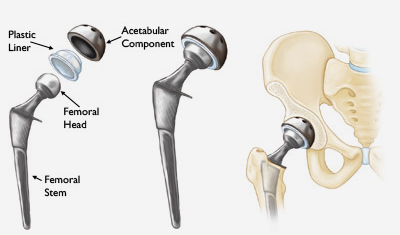Hip Joint Replacement Ahmedabad
